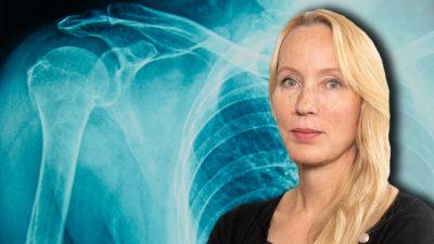 En röntgenbild på en axel, med ett foto på Anna Norling monterat över.