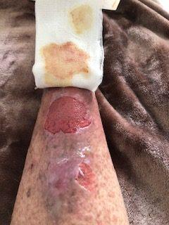 Lars-Eriks skadade ben
